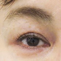 切らない眼瞼下垂術