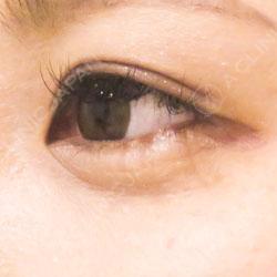 涙袋ヒアルロン酸注射