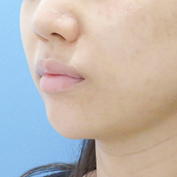ヒアルロン酸注射あご