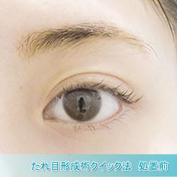 たれ目形成術クイック法(グラマラスライン)
