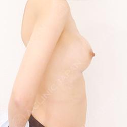 ヒアルロン酸豊胸術