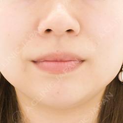 ヒアルロン酸注射ほうれい線