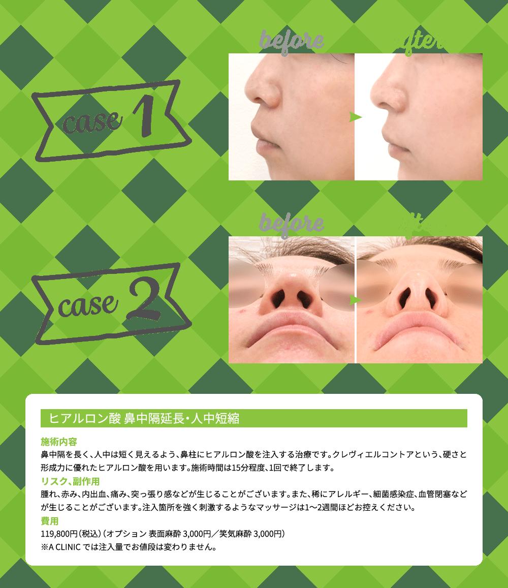 ヒアルロン酸 鼻中隔延長・人中短縮の症例