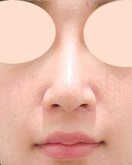ヒアルロン酸 鼻中隔延長・人中短縮 術前