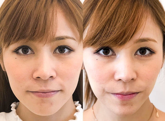小鼻縮小術(埋没法/切開法) 術前と術後