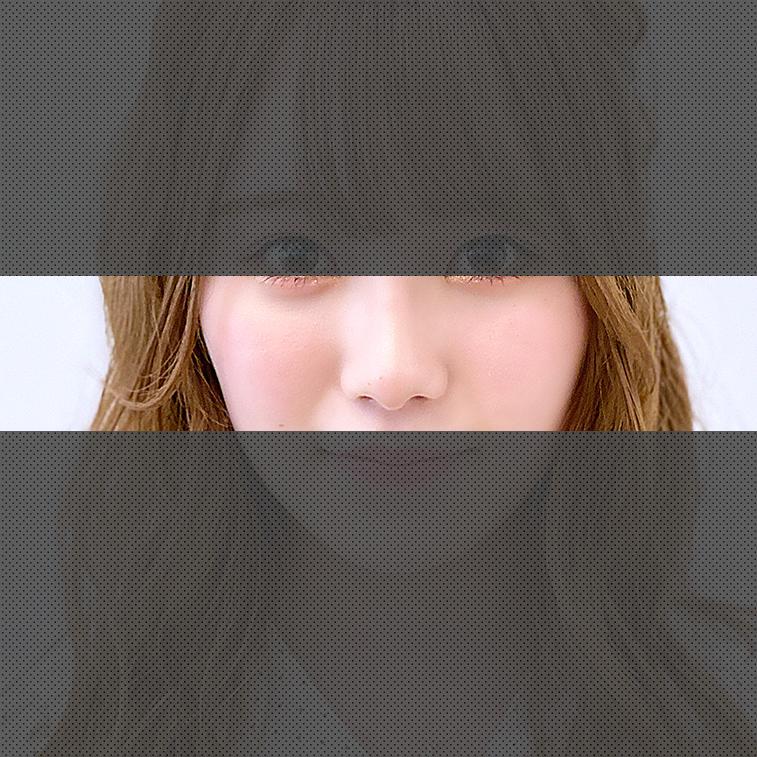 鼻のメニュー 症例写真
