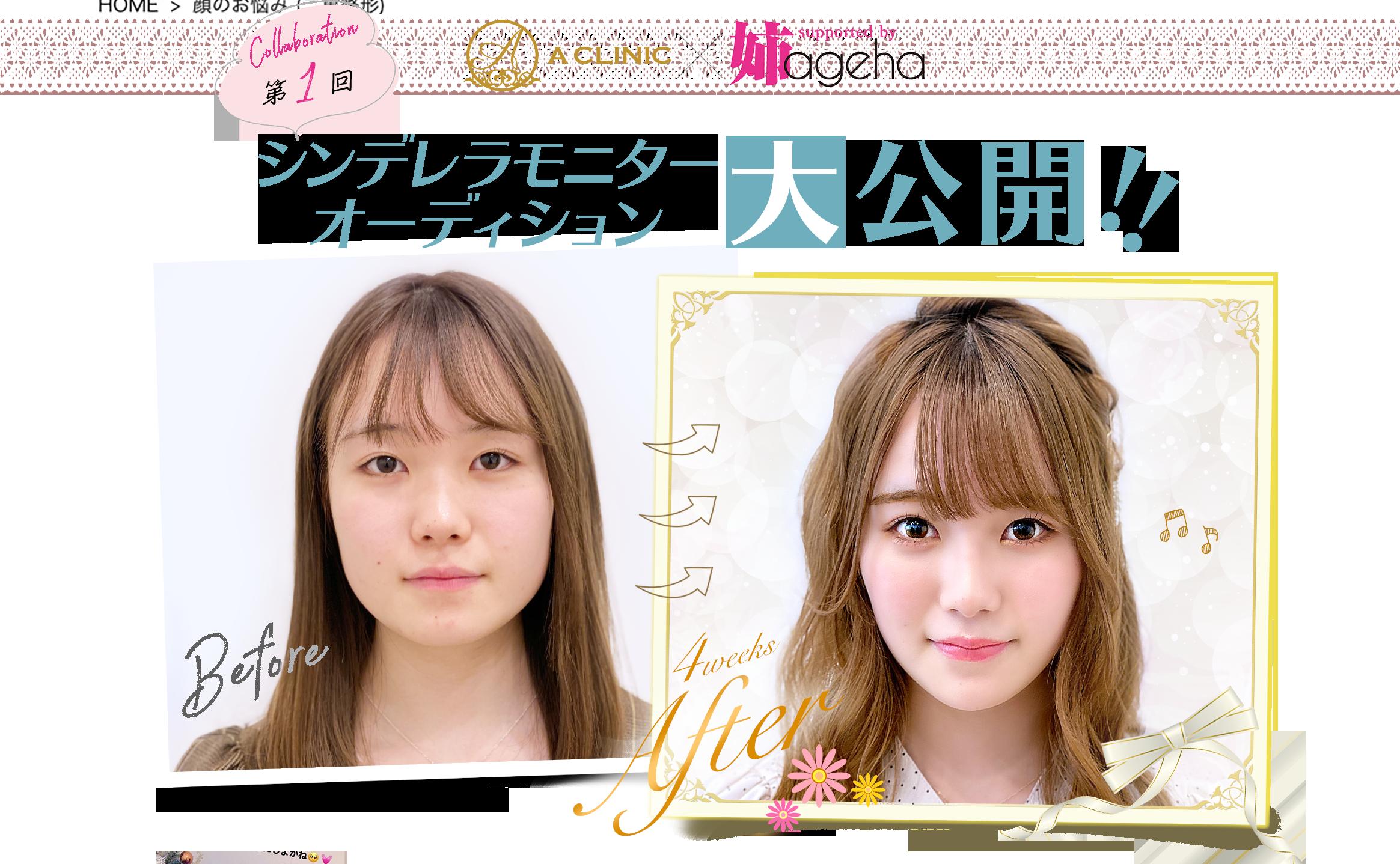 A CLINIC×美人百花 シンデレラモニターオーディション