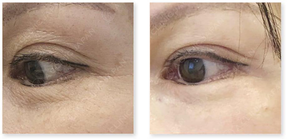 ぷる美注射(PRP血小板療法)症例写真