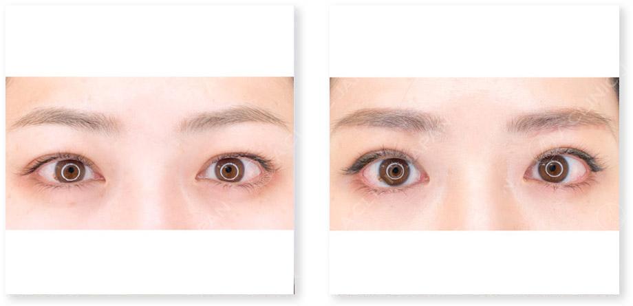 目と眉短縮術症例写真