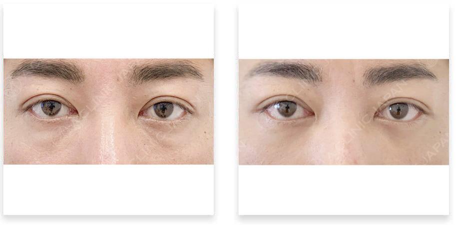 目の下のふくらみ取り症例写真