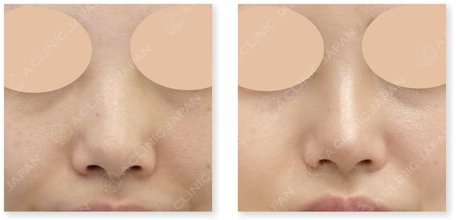 鼻先縮小術切開法