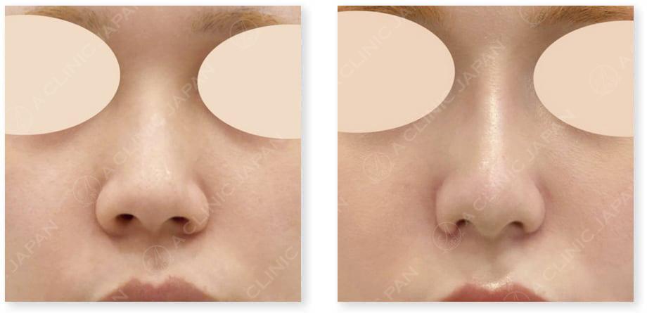 小鼻縮小術切開法