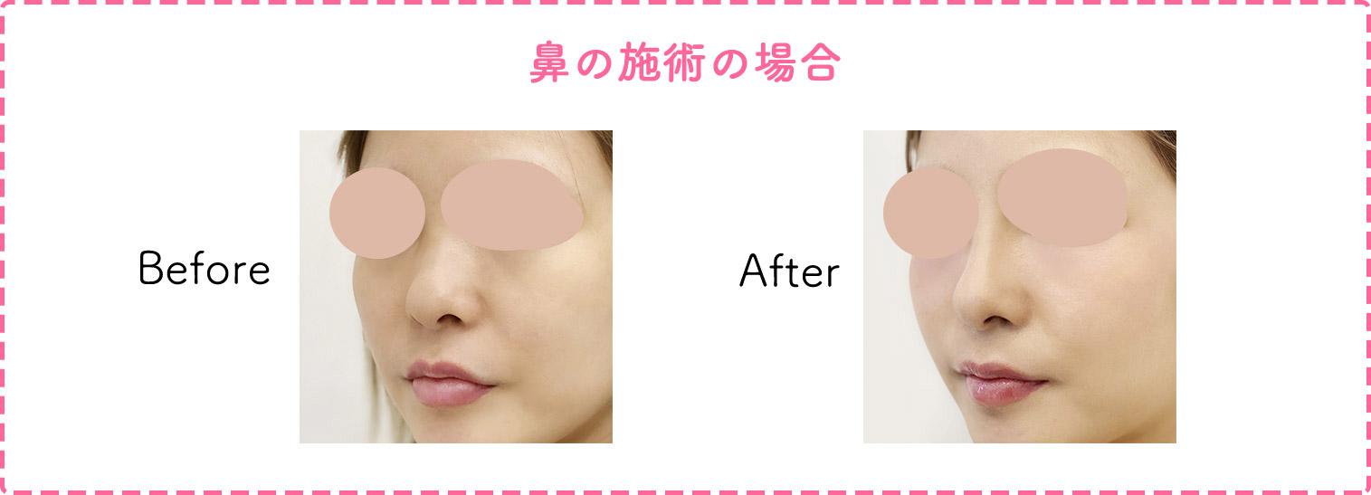 鼻の施術の症例写真