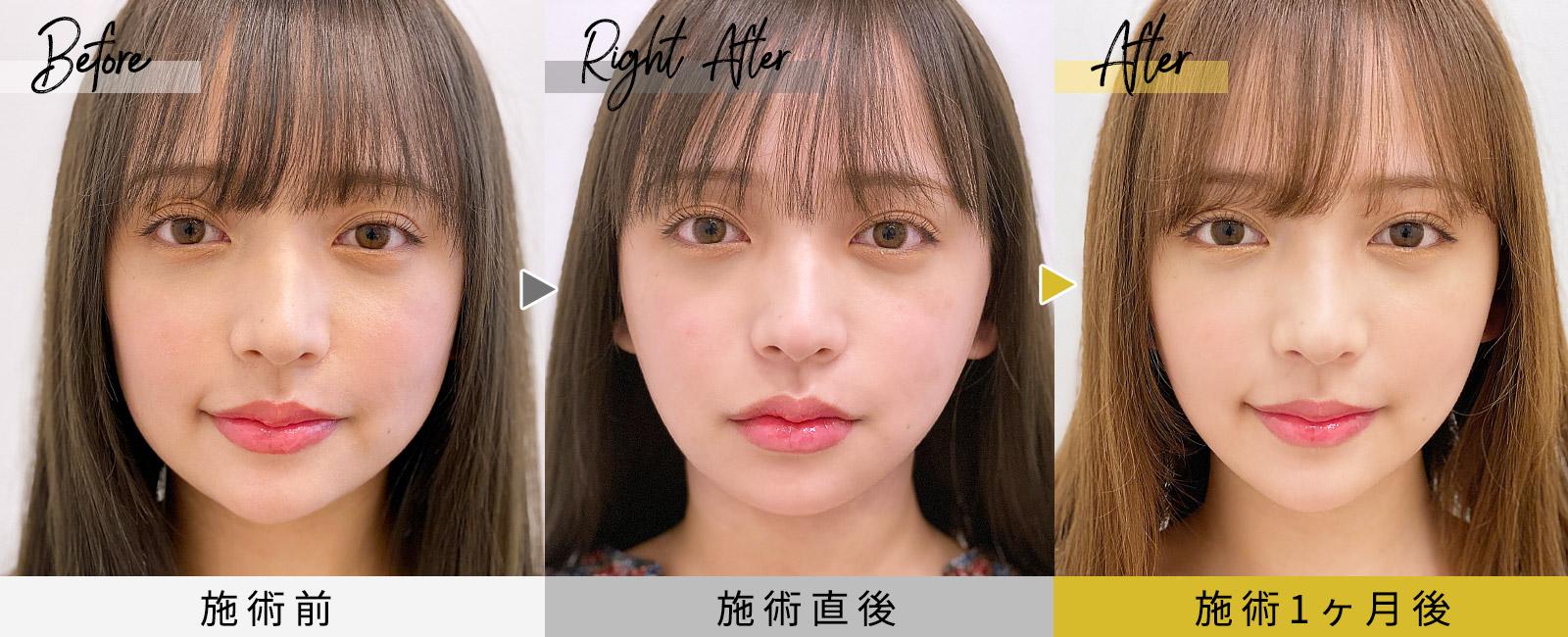 顔の脂肪吸引症例