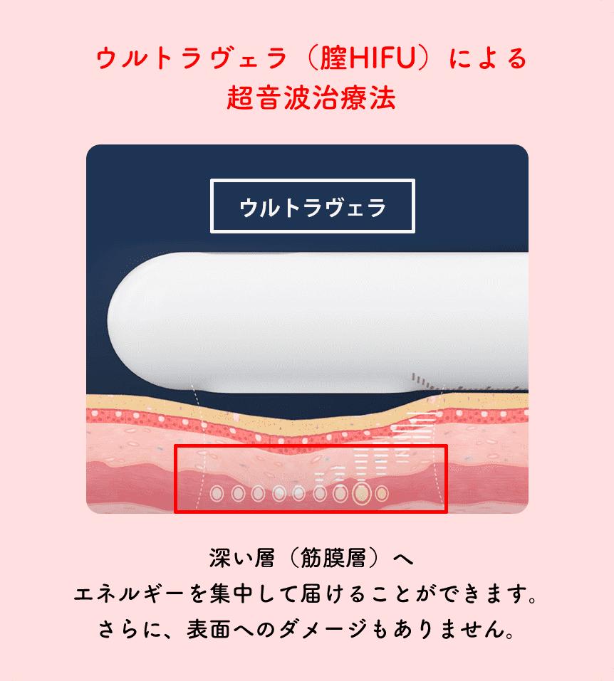 ウルトラヴェラ(膣HIFU)による超音波治療法