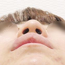 鼻先縮小術