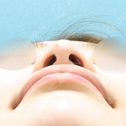 耳介軟骨移植(鼻尖形成)
