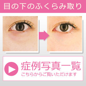 目の下のふくらみ取り症例