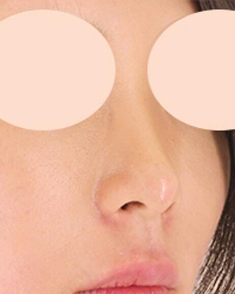 ヒアルロン酸 鼻中隔延長・人中短縮 術後