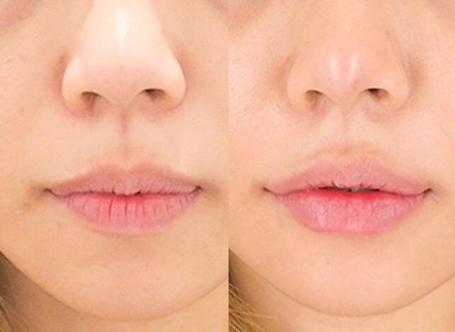 ヒアルロン酸を唇に注入 術前と術後