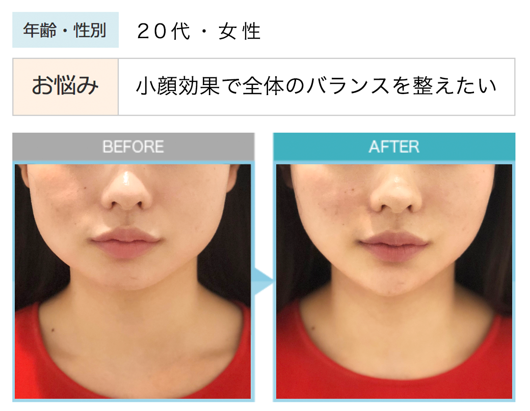 20代女性 小顔効果で全体のバランスを整えたい