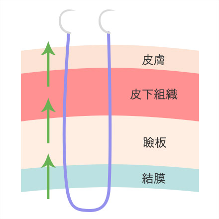 ①結膜側から皮膚へ向かって医療用の糸を通します。