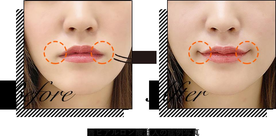ヒアルロン酸唇の症例