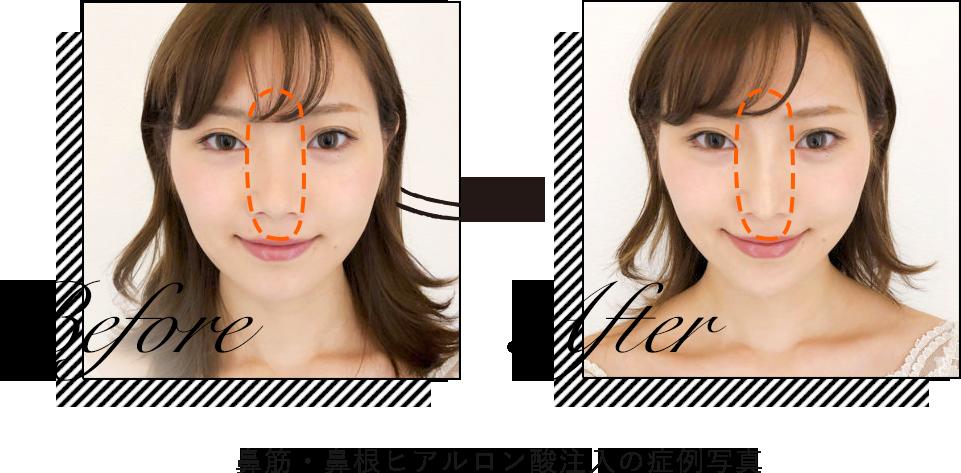 ヒアルロン酸鼻筋・鼻根の症例