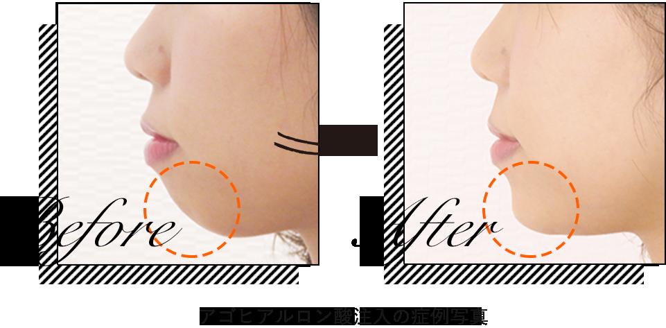ヒアルロン酸顎(アゴ)の症例