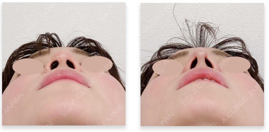 鼻先縮小術埋没法 アドバンス