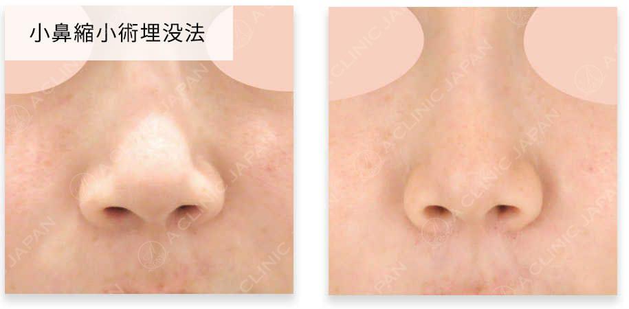 お鼻の全手術