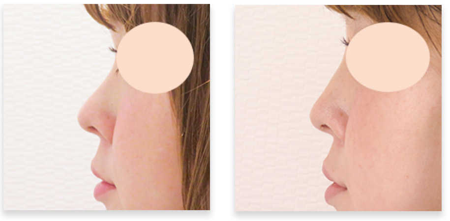 ヒアルロン酸(鼻根・鼻筋)