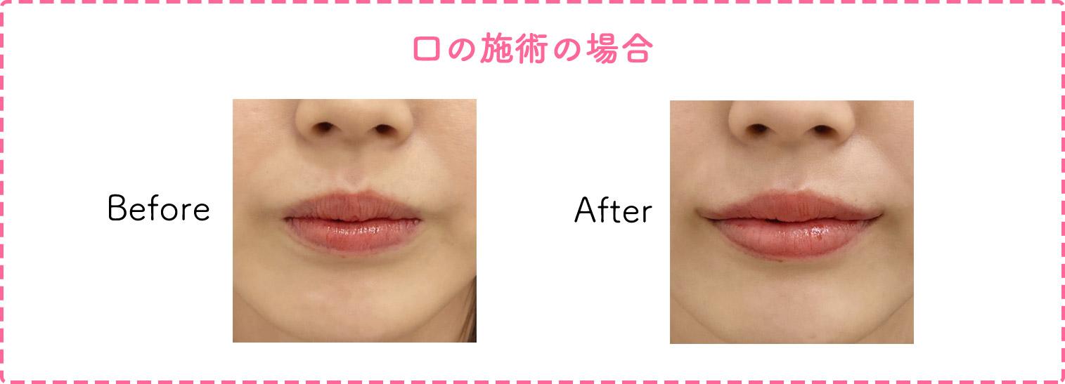 口の施術の症例写真
