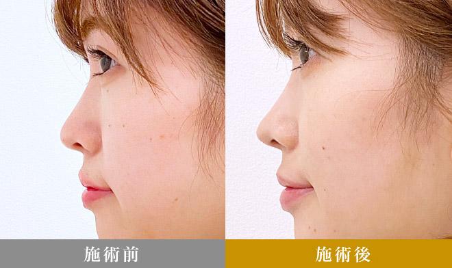 A式鼻先シャープ術症例写真