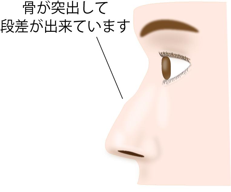 ①鼻の状態を確認