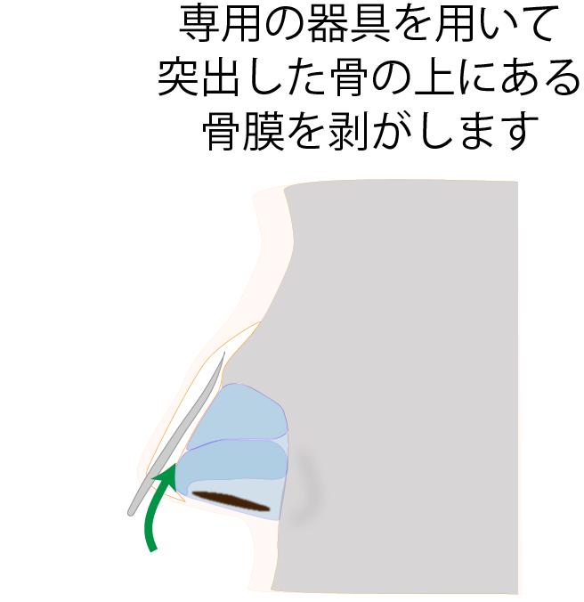 ③骨膜を剥がす