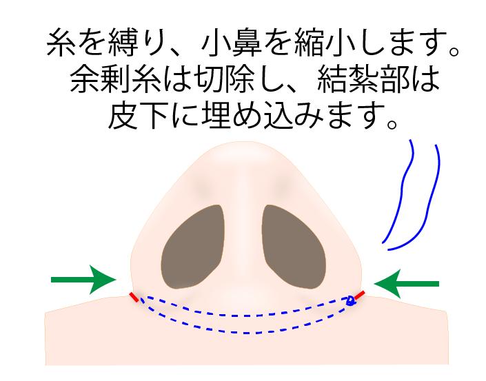 ③糸を縛り小鼻を縮小