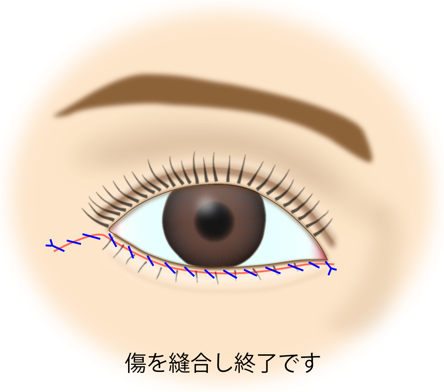 目の下のたるみ取り施術の流れ
