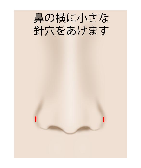 ない 小鼻 縮小 切ら