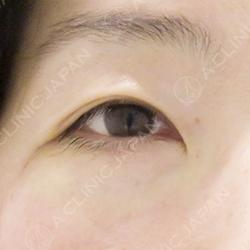 目の下のふくらみ取り