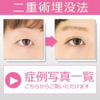 美容外科 美容整形 症例写真