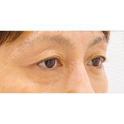 血小板療法(PRP)