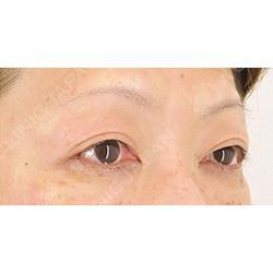 眼瞼下垂治療タッキング法