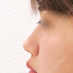 鼻を高くするヒアルロン酸注射