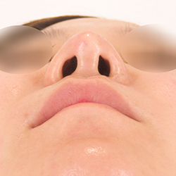 ヒアルロン酸鼻中隔延長・人中短縮