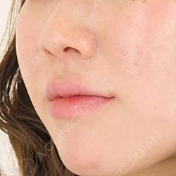 ヒアルロン酸注射唇