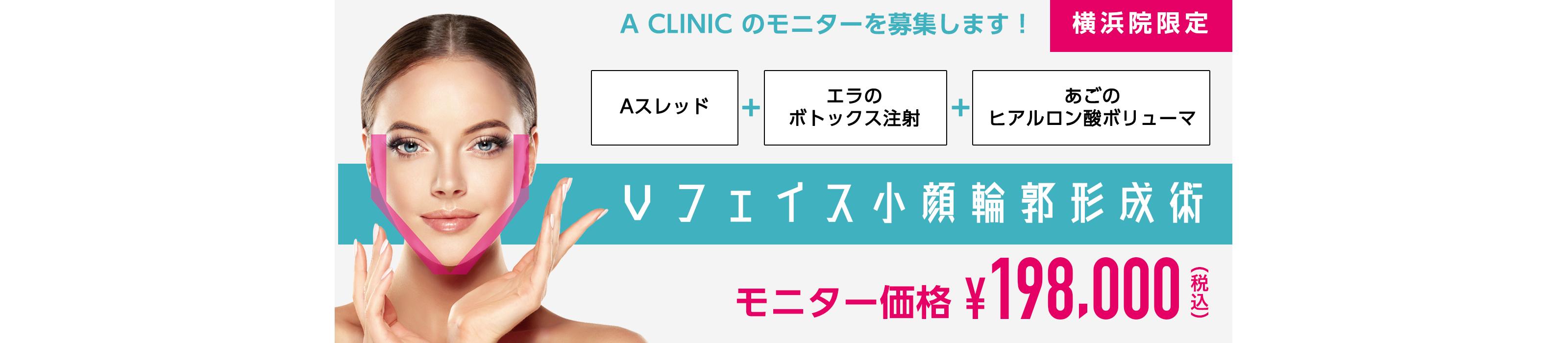 【A CLINIC 横浜院限定】モニター募集〜Vフェイス小顔輪郭形成術〜